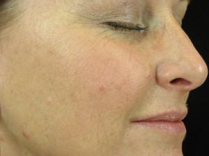 huidverjonging
