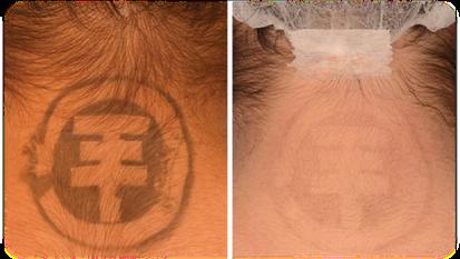 Uw tatoeage verwijderen